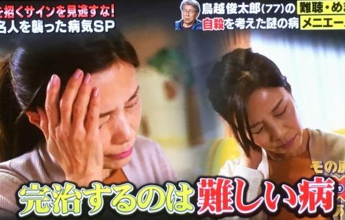 2017-04-21メニエール病完治しない