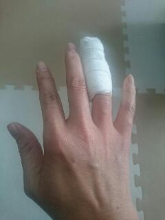 右手薬指、術後シーネ固定