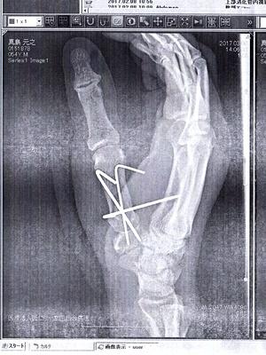 右手手術後レントゲン写真1703